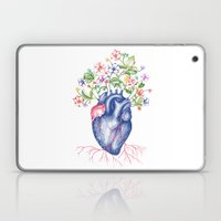 Strawberry Heart  Laptop & iPad Skin