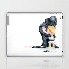 enemies hug I Laptop & iPad Skin