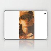 Kisses Laptop & iPad Skin