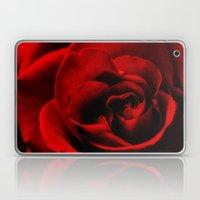 Lovers Choice Laptop & iPad Skin
