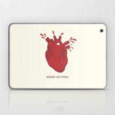 Hearts are Gross Laptop & iPad Skin