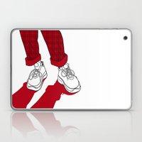Rainbow Gossip - Red Laptop & iPad Skin