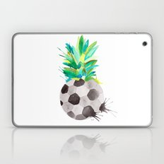 Soccerapple Laptop & iPad Skin