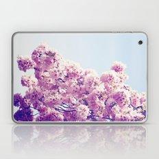 Dancing Lady Laptop & iPad Skin
