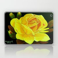 A Rose for You Laptop & iPad Skin