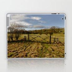 The Yorkshire Dales Laptop & iPad Skin