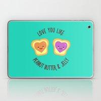 Sweet Lovers Laptop & iPad Skin