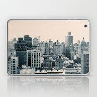 The View Laptop & iPad Skin