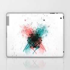 QUEEN Laptop & iPad Skin