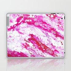 Rose Quartz 2 Laptop & iPad Skin