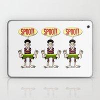 SPOOT! Laptop & iPad Skin