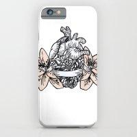 iPhone & iPod Case featuring azalee by bloodpurple