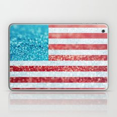 Red, White, and Glitter (Photo of Glitter) Laptop & iPad Skin