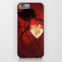 Heartbeat iPhone 6 Slim Case