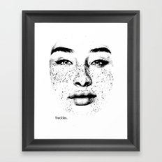 freckles. Framed Art Print