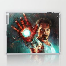 Light 'Em Up Laptop & iPad Skin