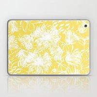Bright Breezy Laptop & iPad Skin
