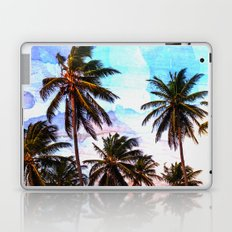 This is a Breeze Laptop & iPad Skin