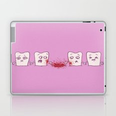 Red Rover, Game Over Laptop & iPad Skin