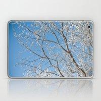 Verglas Laptop & iPad Skin