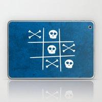 Skull & Bones Laptop & iPad Skin