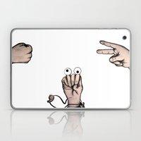 Rock, Scissors, Hanz Laptop & iPad Skin