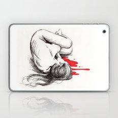Bleeding Out Laptop & iPad Skin
