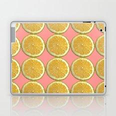 Lemons Citrus Fruit Color Photo Art Laptop & iPad Skin