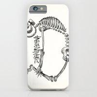 "iPhone & iPod Case featuring ""Dhanurasana"" Skeleton Print by devonstorm"