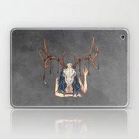 Long Live The Dead - Dea… Laptop & iPad Skin