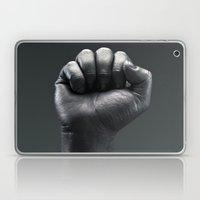 Protest Hand Laptop & iPad Skin