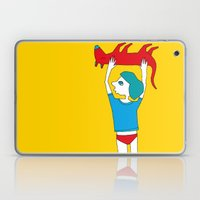 Dead dog Laptop & iPad Skin