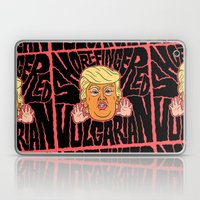 Short-Fingered Vulgarian Laptop & iPad Skin