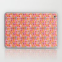 The Roses You Forgot Laptop & iPad Skin