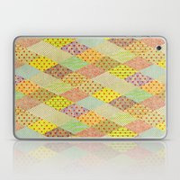 SPONGE CAKE / PATTERN SERIES 001 Laptop & iPad Skin
