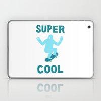 Super Cool Laptop & iPad Skin
