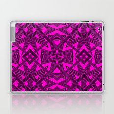 Ziggy Zaggy  |  Pink And Black Laptop & iPad Skin