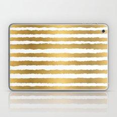 Earning Her Stripes Laptop & iPad Skin