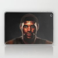 MVP Laptop & iPad Skin