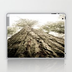 Things Are Looking Up (2) Laptop & iPad Skin