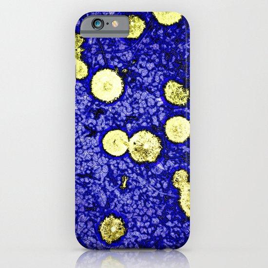Symphony of Night iPhone & iPod Case