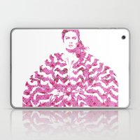 Chevron: Fashion Laptop & iPad Skin