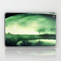 My World Laptop & iPad Skin