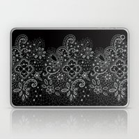 B&W Lace Laptop & iPad Skin