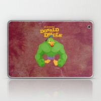 coupling up (accouplés) Donald Dhulk Laptop & iPad Skin