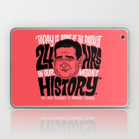 The Darkest Hours In Our… Laptop & iPad Skin