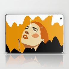 Unexpected Laptop & iPad Skin