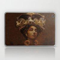 Brass Ring Dream Laptop & iPad Skin