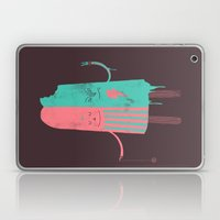 Non-Identical Twins Laptop & iPad Skin