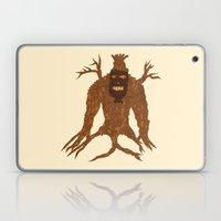 Tree Stitch Monster Laptop & iPad Skin